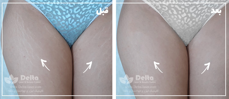 رفع ترک پوستی رفع استرچ مارک درمان استریا ترک بارداری و ترک حاملگی