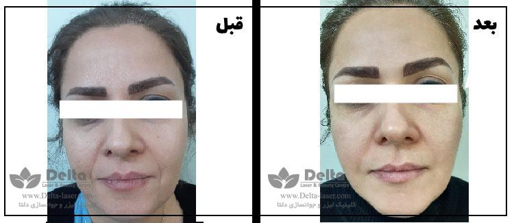 جوانسازی صورت خط خنده دور چشم و پیشانی با لیزر فوتونا