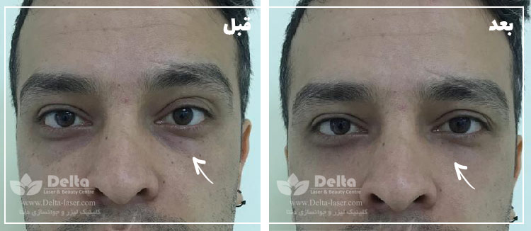 تزریق ژل زیر چشم فیلر زیر چشم رفع گودی و تیرگی زیر چشم