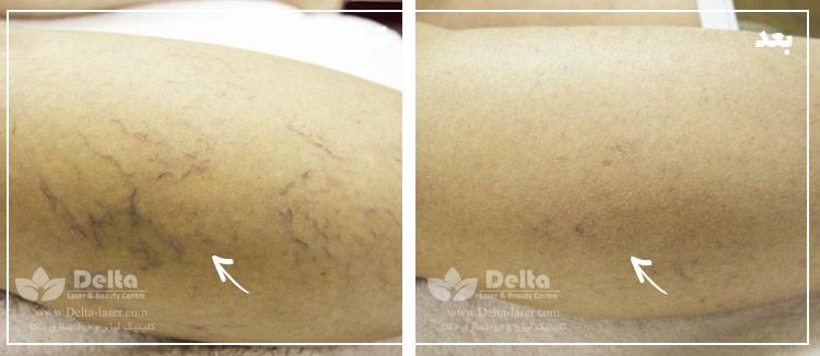 رفع و درمان واریس درمان مویرگ های سطحی مویرگ عنکبوتی واریس عنکبوتی